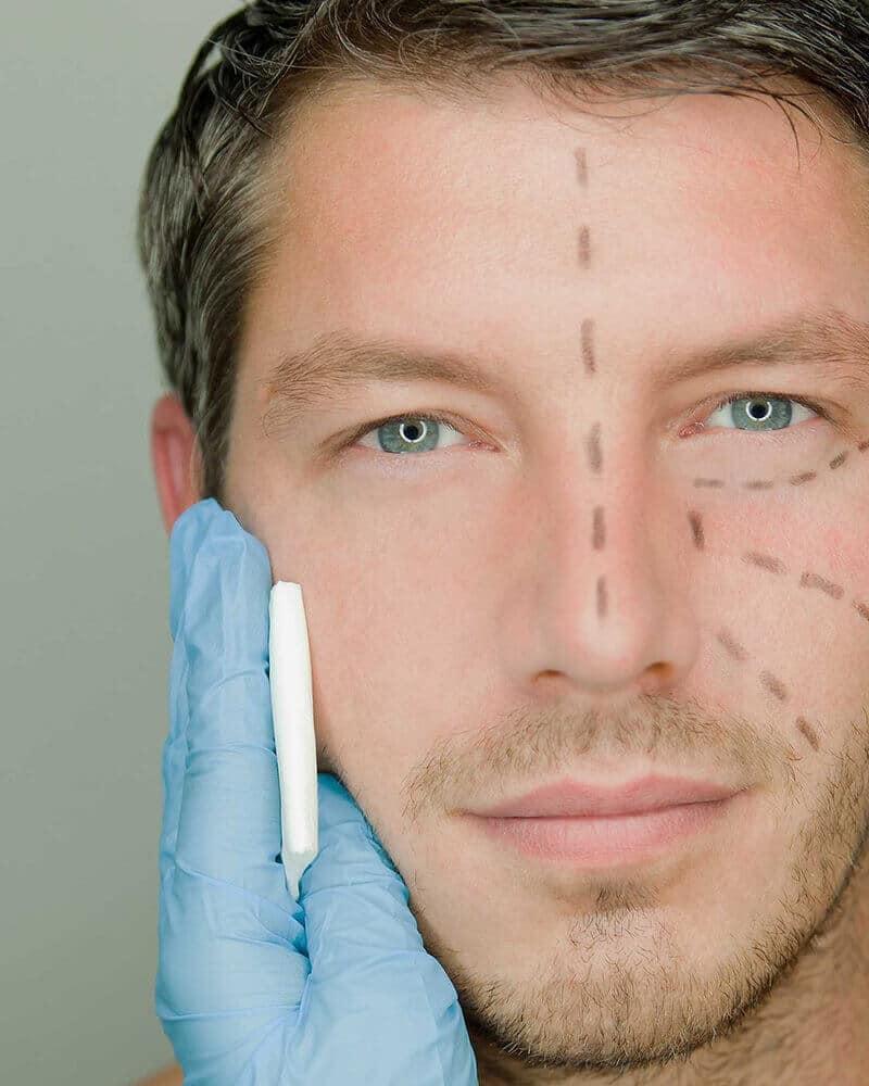 Cirurgia para Homens