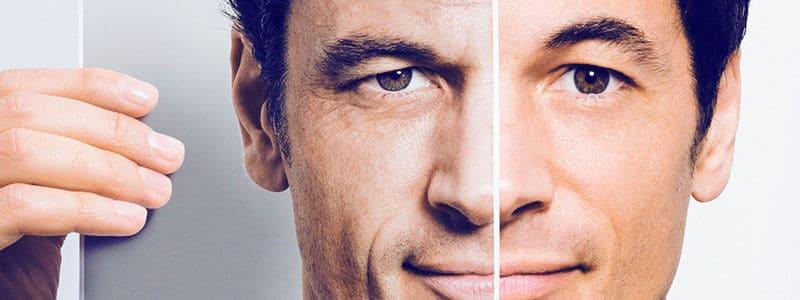 Cirurgia plástica em homens: por que tem aumentado tanto?