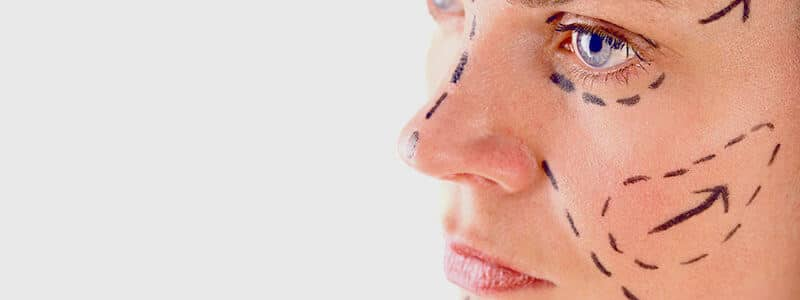 Conheça os tipos de cirurgia plástica no rosto