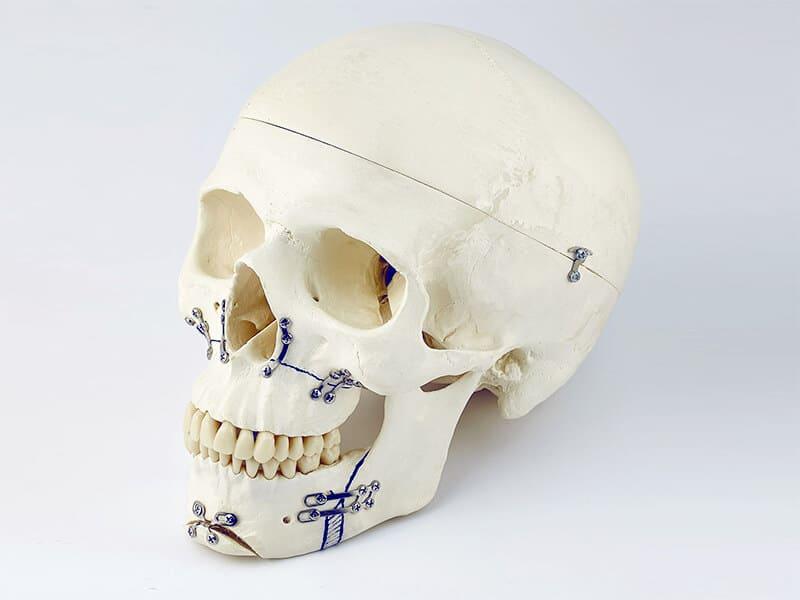 Você já ouviu falar em cirurgia craniomaxilofacial?